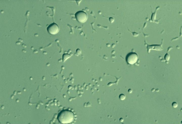 wpid-17196_batterio.jpg