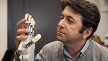 La prima mano bionica e' stata sviluppata da ricercatori italiani
