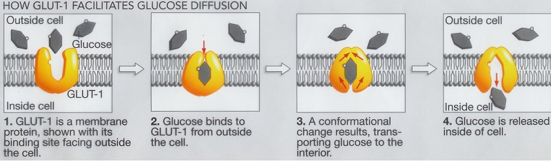 Descrizione del comportamento del glucosio in caso di deficit di Glut1 (Fonte Associazione Italiana Glut1 onlus)