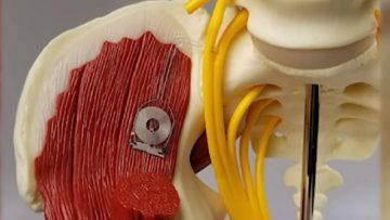 Biomedicina: realizzato il primo impianto bioassorbibile per la rigenerazione dei nervi
